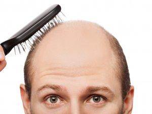 Saçın İlacı Kanınızda Gizli