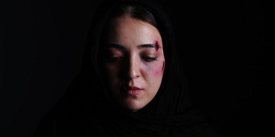 Şarkıcı Neco'dan Eşine Şiddet