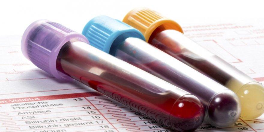 Yaz Aylarında Viral Hepatite Dikkat