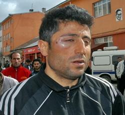 Sarıkamış'ta Hakem Futbolcuya YUMRUK Attı