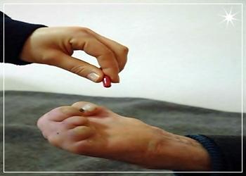Türkiye'de 4 Bin Cüzzam Hastası Var