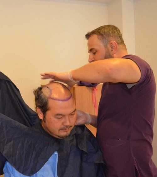 Saç Dikimi İçin Türkiye'yi Tercih Ettiler